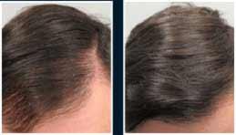 FOLLIXIN dokonale posiluje vlasy